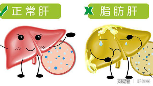 What is the cause of fatty liver? You've been caught by these three evils. Don't underestimate any of them.