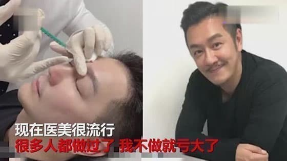 50-year-old Chen Haomin generously admitted that plastic surgery,needles directly between the eyebrows:many people do,it will suffer losses for me not to do it